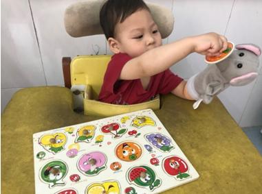 P CIMT-Phương pháp phục hồi chức năng mới cho trẻ bại não liệt nửa người có tương lai tươi sáng hơn