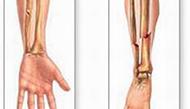 Phục hồi chức năng sau chấn thương, gãy xương